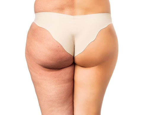 faire liposuccion cuisse